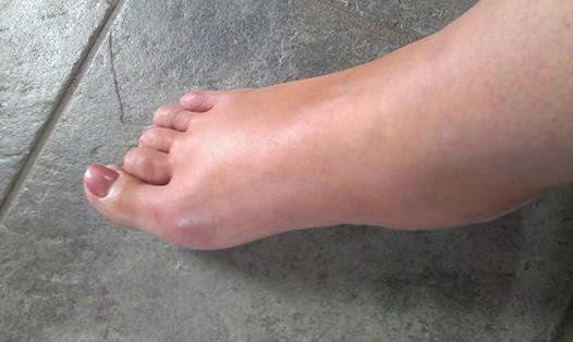 crise arthrose pied